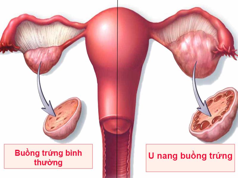 Hình ảnh: U nang buồng trứng