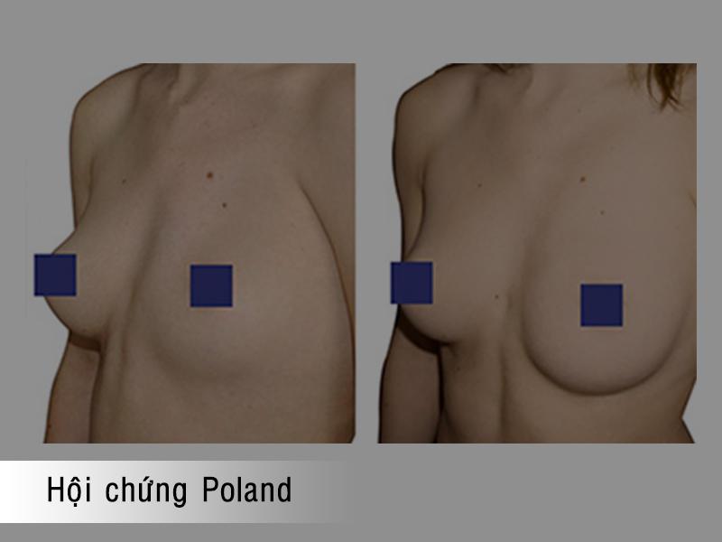 Hội chứng Poland gây lệch ngực
