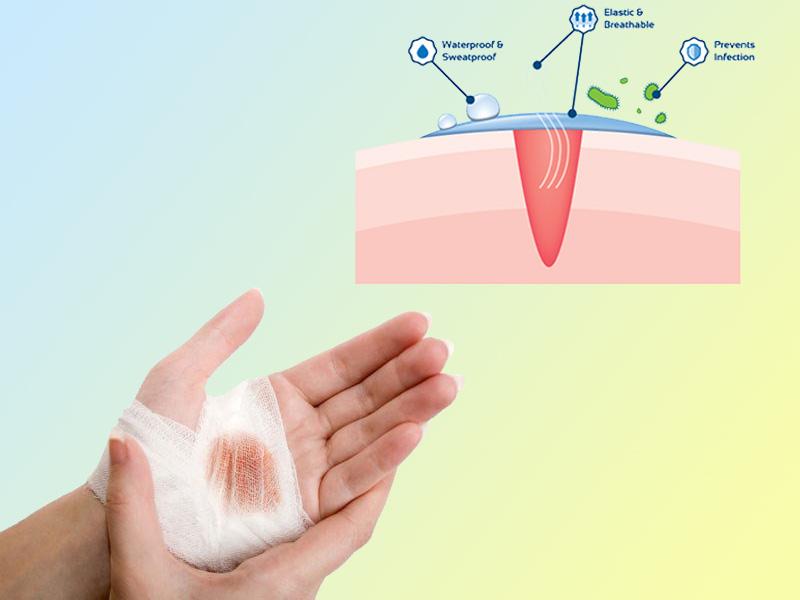 Màng sinh học polyesteramide giúp phục hồi vết thương nhanh chóng